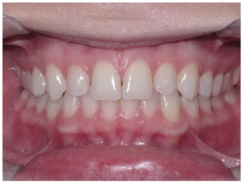 Online Smile Assessment Frontal Intraoral Photo