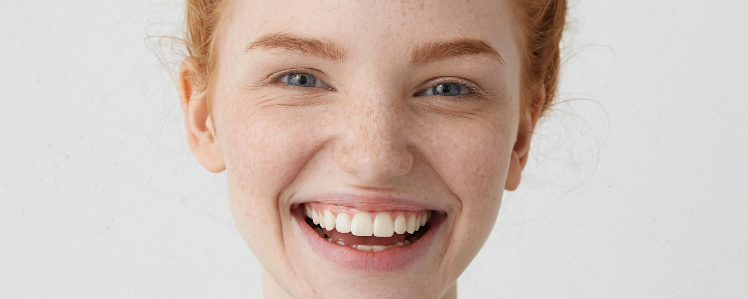 Huerter Orthodontics Invisalign® Teen
