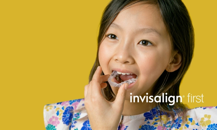 Huerter Orthodontics Invisalign® Treatment